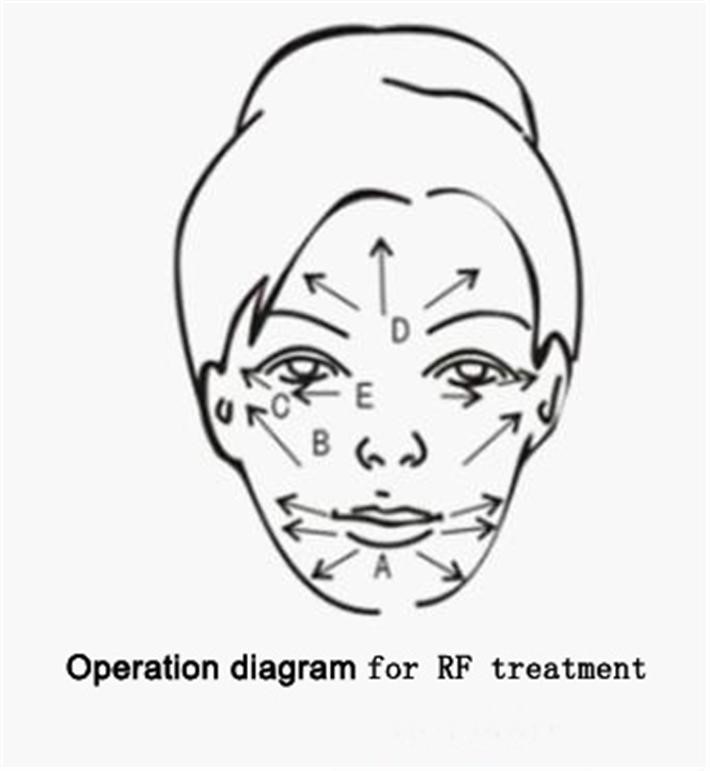 HL CG05 RF operate pattern 3